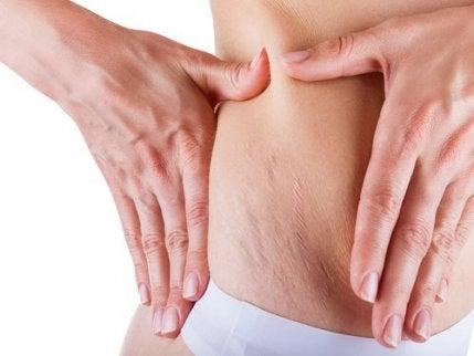 임신부 튼살을 어떻게 관리해야 할까?
