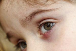 아이의 다래끼를 어떻게 치료할까?
