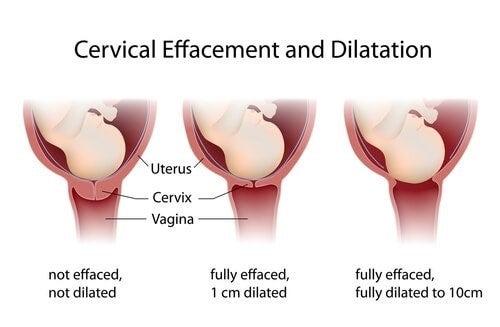 분만 시 자궁경부가 확장되는 동안 어떤 일이 일어나는가?