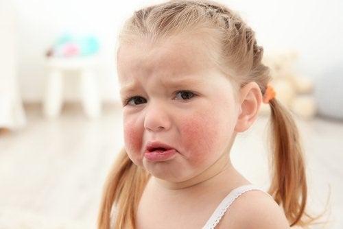 아이들에게 가장 흔한 음식 알레르기