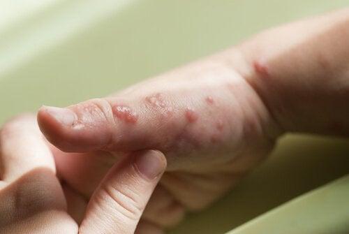 이 글에서는 헤르페스의 증상, 원인 및 치료에 관해 알아본다. 헤르페스, 즉 포진은 우리가 생각하는 것보다 훨씬 더 흔하게 아이에게 발생한다. 전염성이 매우 높으며한 번 감염되면 일생 동안 몸에 갖고 살아가게 된다. 헤르페스는피부에 병변을 일으키는 바이러스성 감염 질환이다.