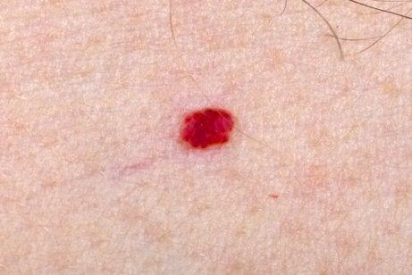 아이에게 혈관종이 있다면 어떻게 해야 할까?