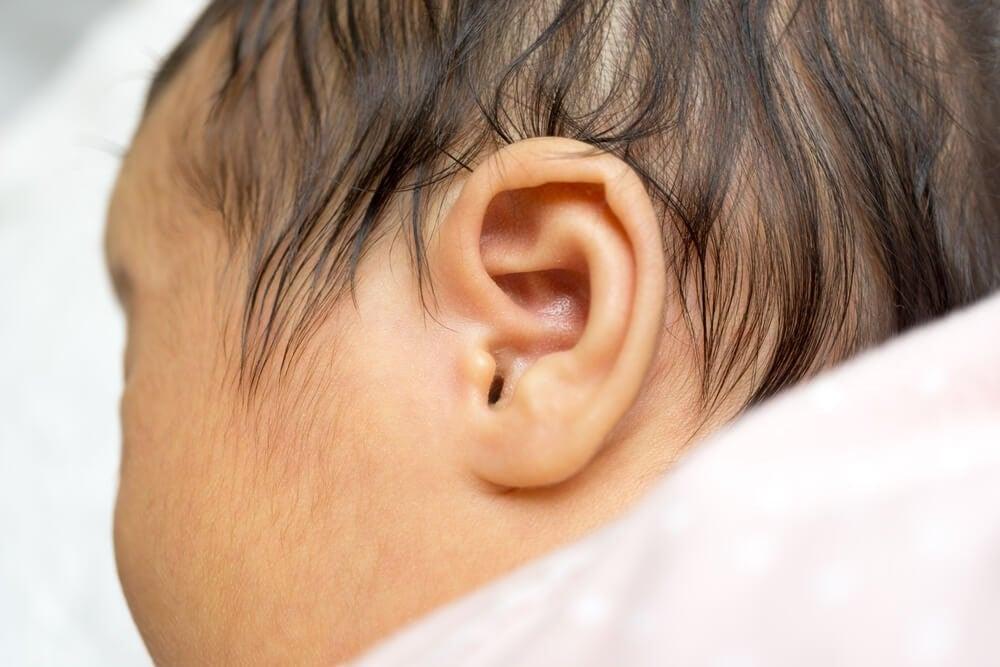신생아 청각 장애를 조기에 발견하기