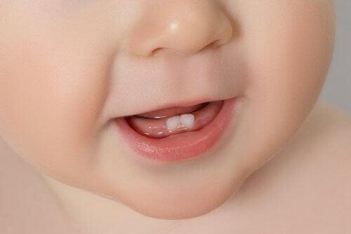첫 치아가 나올 때 통증 및 완화 방법