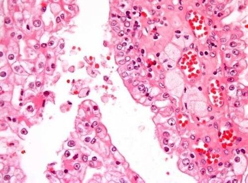 소아 신장암의 증상과 원인