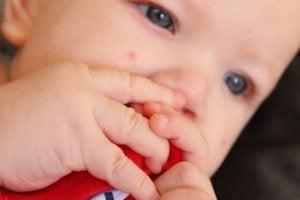 신생아 패립종