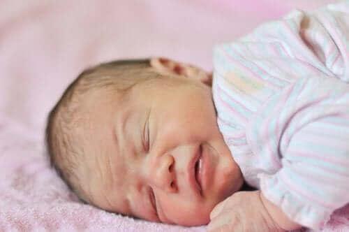 아기 빈혈의 원인, 증상 및 치료