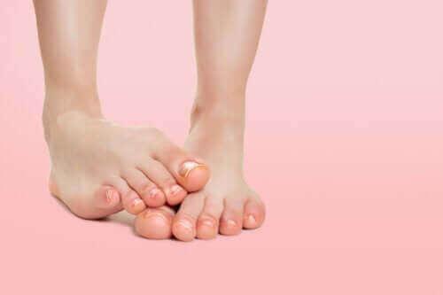 소아 발바닥 피부염은 무엇일까