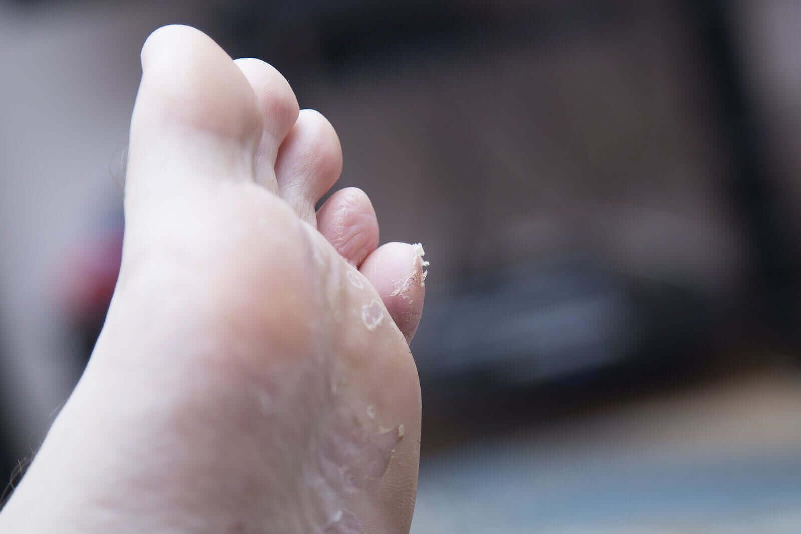 소아 발바닥 피부염의 원인은 무엇일까?